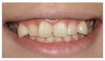 false teeth_02